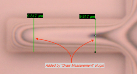 Example of measurements draw on a microscope image